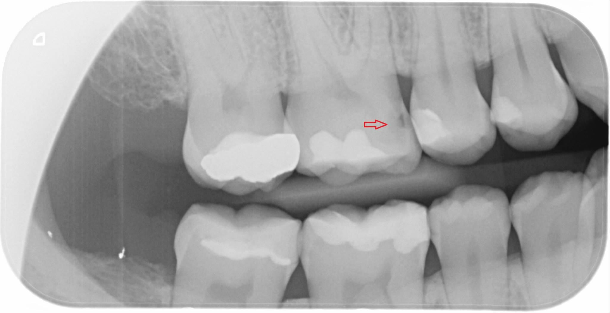 Rontgen zubov